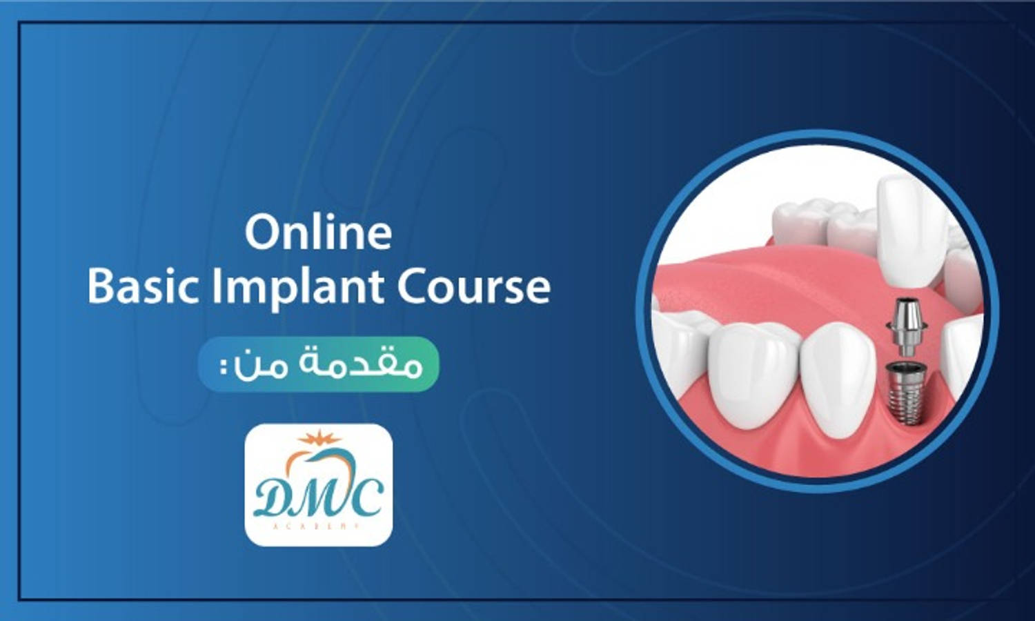 Online Basic Implant Course