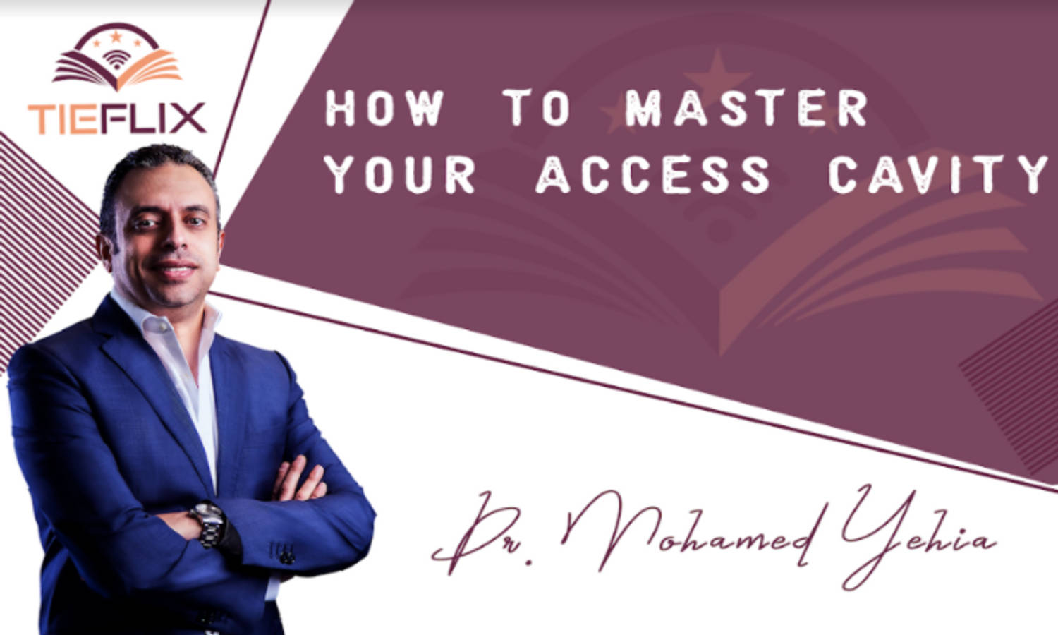 How to Master Your Access Cavity